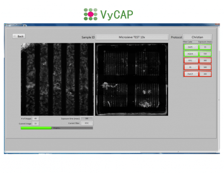 https://www.vycap.com/inhoud/uploads/VyCAP-imaging-software-2-1141-x-883-1.png