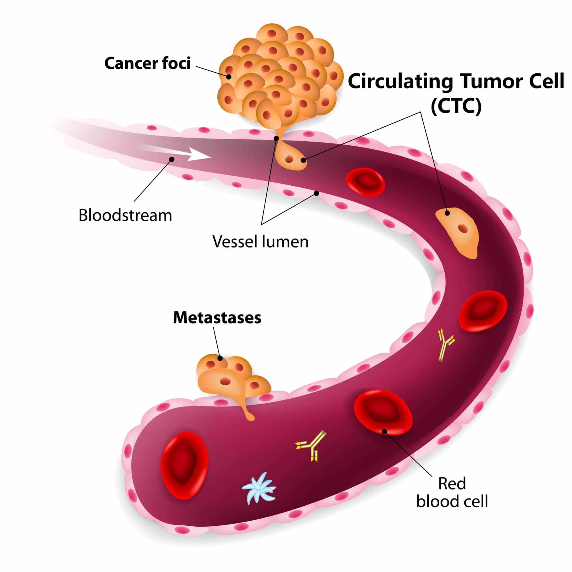Image result for circulating tumor cells